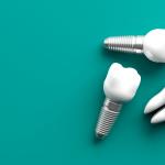 Dantų implantai: kaip teisingai pasirinkti? (+Kainos palyginimas)